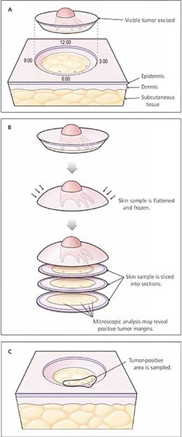 esquema de cirugía de Mohs